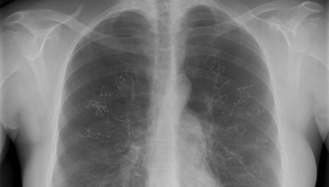 Fumar causa mutaciones en diferentes órganos del cuerpo